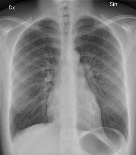 how do effusion ls work gps in optimal position to identify occupational lung