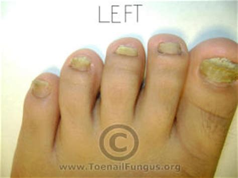 Why Do Itch So Bad After A Shower by Bad Toe Nail Small Toenail Fungus