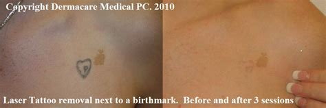 laser removal on skin collection
