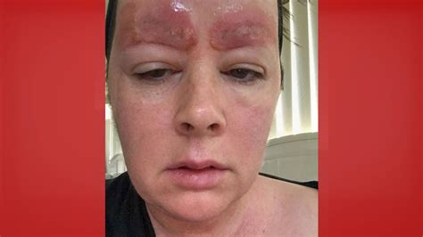 missing eyebrows scabies  crushed skull