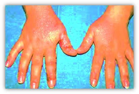 alimenti con nichel solfato caso clinico di paziente affetto da dermatite da contatto