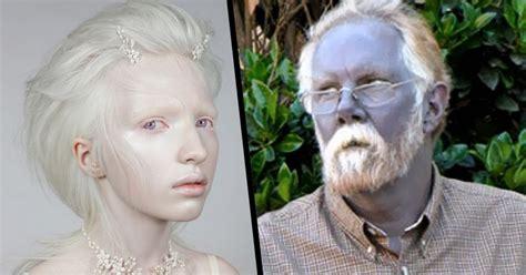 imagenes raras de humanos 5 extra 241 as enfermedades que pueden cambiar el color de tu