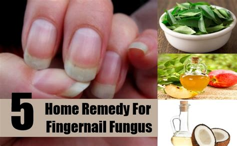 fingernail fungus home remedies treatments cure