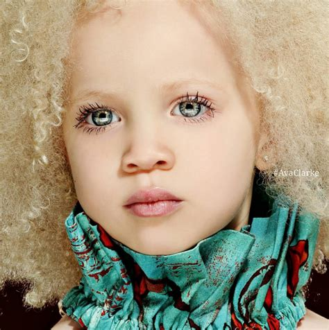 Bright And Beautiful Amara by Clarke A Gorgeous Black With Albinism Just