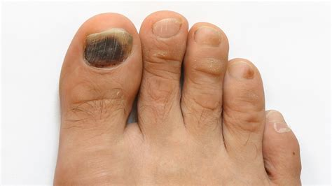 what is the inn color for toes for spring how to prevent toenail fungus foot care youtube