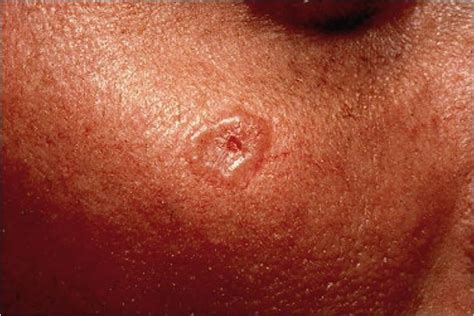 basal cell tumor morpheaform basal cell carcinoma pictures