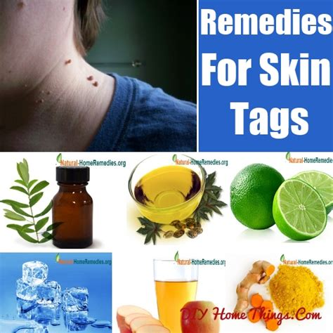remove skin tags naturally diy home things