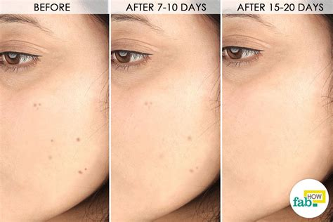 how to get rid of light spots on face how to get rid of dark spots on face with just 1 ingredient