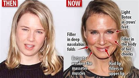 celebrities who have had a neck lift celebrity plastic surgery gone wrong