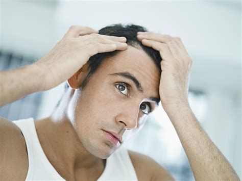 treating hair fall 50 effective male pattern balding cure sector definition