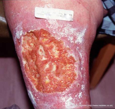 Joran Pancing Virus leg ulcers book covers