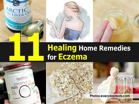 Home Remedy For Eczema by 11 Healing Home Remedies For Eczema