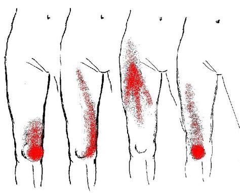 trigger points fibromyalgia diagram myofascial mps and fibromyalgia