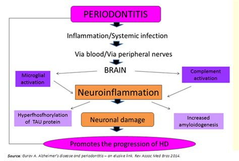 Periodontitis And Systemic Diseases A Literature Review by Periodontitis Determining The Onset And Progression Of Huntington S Disease Review Of The