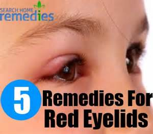 itchy eyelids home remedy remedies for eyelids eyelids treatments home