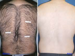 po implantate vorher nachher laserbehandlung therapie narben akne falten info medizin