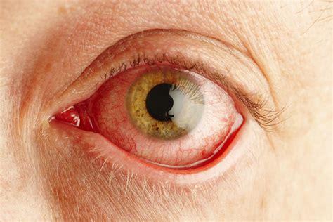 pink eye pink eye conjunctivitis symptoms and causes