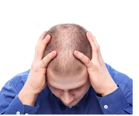 Male Pattern Hair Loss Testosterone | hair loss low testosterone symptoms