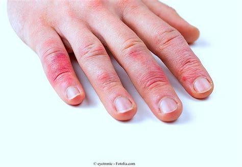 prurito alle gambe dopo la doccia prurito sulla pelle secca cause e rimedi naturali