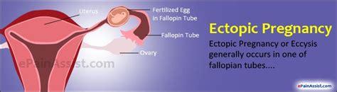 ectopic pregnancy treatment  symptoms signs