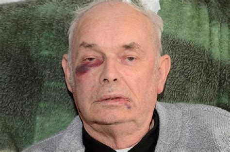 Higher Walton Man Left With Black Eye After Being Attacked Black Eye Ft Walton