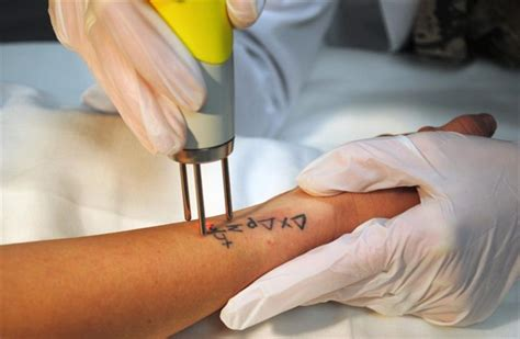 tattoo removal cream in bangalore 74 off on 3 sessions of 3 inch laser tattoo removal sai