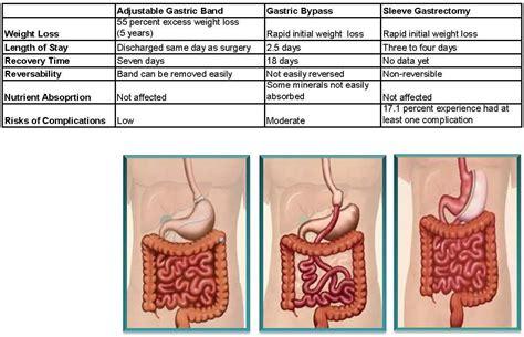 3 weight loss surgeries home weight loss program weight loss surgery types