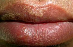 flesh colored bump on lip bumps on causes treatment pictures