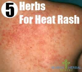 home remedies for heat rash how to get rid of pimples with remedies apps