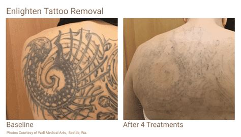 tattoo removal process and cost tattoo removal in seattle at well medical arts