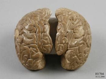 How To Make A Paper Mache Brain - 17 best images about anatomical props teaching aids on