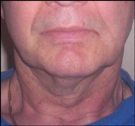 best hairdo for neck wrinkles hairstyles for women with neck wrinkles old man wrinkle