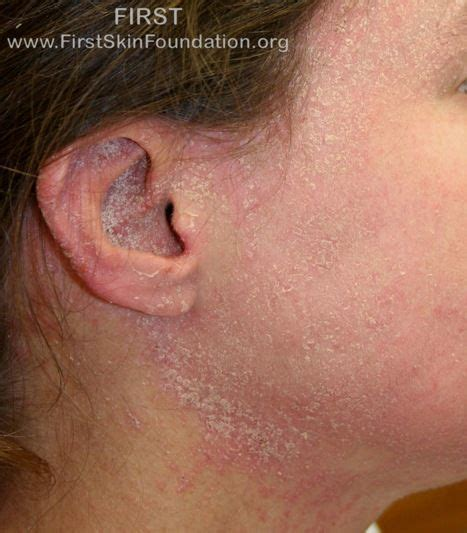 type of disease skin conditions ichthyosis types foundation for ichthyosis related