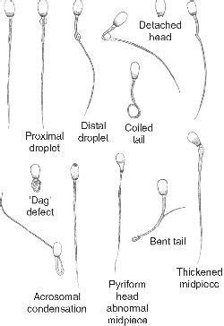 sperm motility  symptoms treatment sperm motility