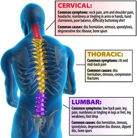 reason for back pain after c section 35 best back pain images on pinterest chronic pain