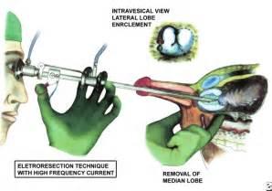 green light surgery laser surgery cost of green green light laser