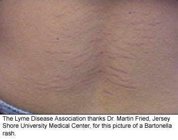 Back Lesions And Lyme Detox by Bartonella Rash Flickr Photo