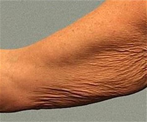 Crepey Skin On Arms | to fix on pinterest