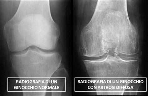 dolore al ginocchio parte laterale interna ortopedici torino patologia