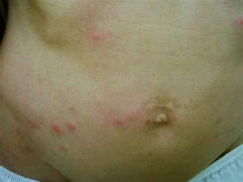 how does bed bugs bites look what does a bed bug bites look like what does it look