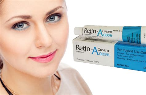 12 Best Tips On Treating Acne by Treating Acne With Retin A Does It Work