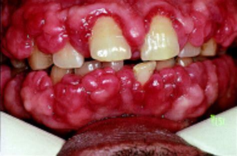 Or Gum Bleeding Gums Causes Symptoms Treatment Bleeding Gums