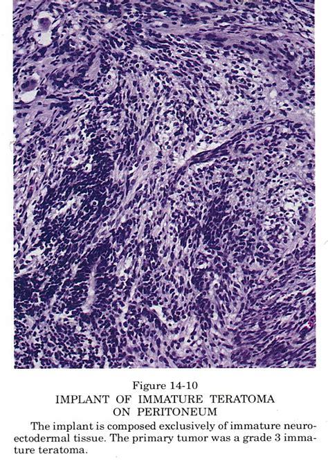 Immature Teratoma Pathology Outlines pathology outlines teratoma immature
