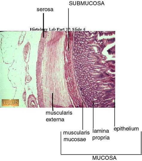 what are the four sections of the large intestine labeled histology slides