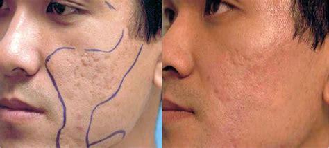 acne scars on face treatment acne scar correction