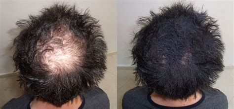 can you get sisterlocks with bald spots natural methods to cure baldness and hair regrowth