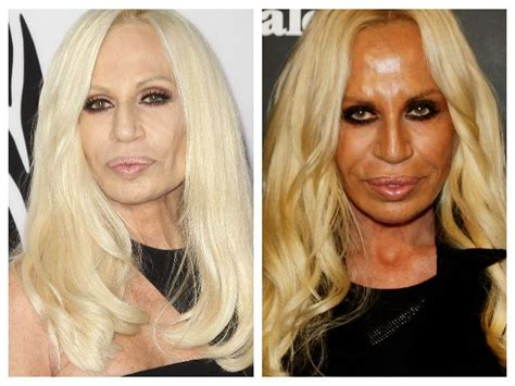 Donatella Versaces Admitted To Hospital For Anorexia by Tanorexia Un Mal Que Afecta A Las Estrellas Soyactitud