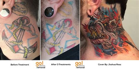 tattoo cover up after laser removal amazing cover up after 4 total removal treatments