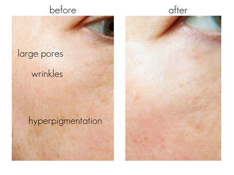 tria beauty laser before and after pictures tria age defying laser results and video beautiful