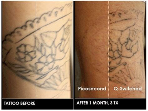 pico laser tattoo removal cost picosure laser removal virginia laser